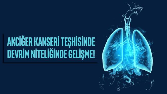 Akciğer kanseri teşhisinde devrim niteliğinde gelişme!