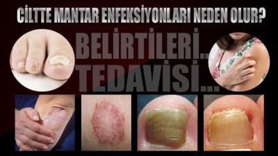 Ciltte mantar enfeksiyonu nedir, neden olur? Mantar enfeksiyonu belirtileri ve tedavisi…