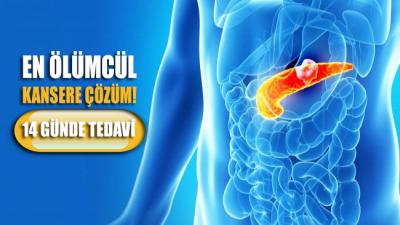 En ölümcül kansere çözüm: 14 günde tedavi artık mümkün